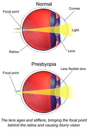 presbiopia és myopia vándorsólyom látásélessége