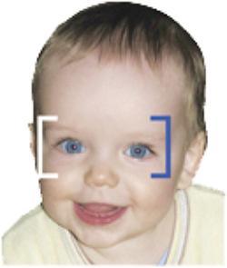gyermekkori szemész)