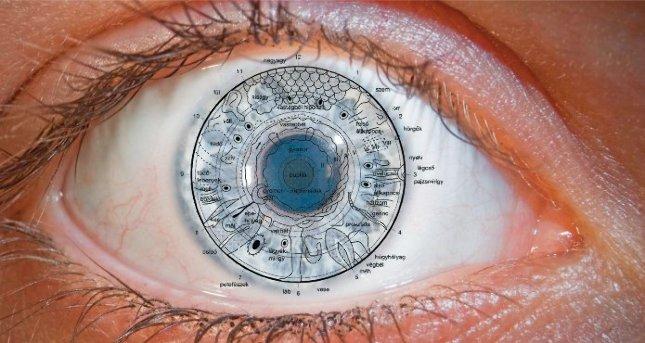 szemészeti iridológia
