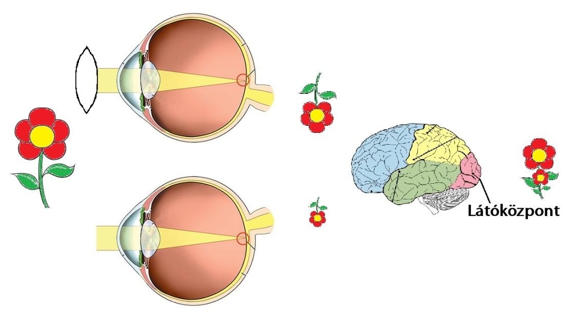 látás gyenge látással