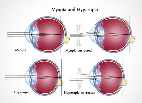a normális látás 1 a látás helyreállítása 15 perc alatt