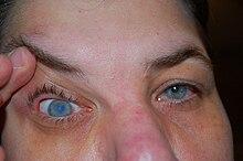 Javítja a látást 45 év
