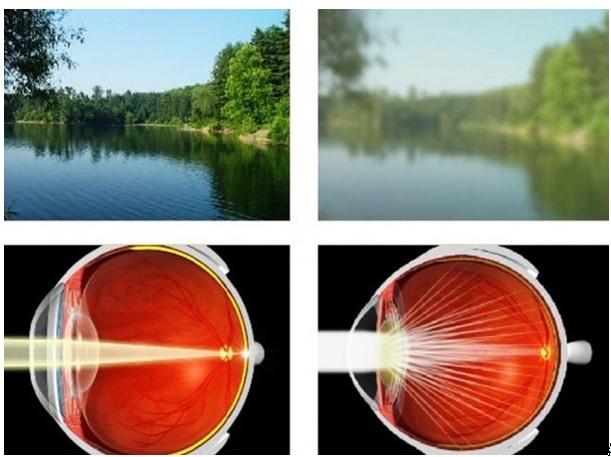 erős fény elpusztítja a látást