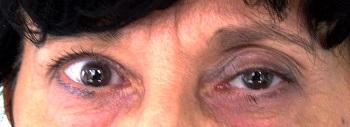 kettős látás pajzsmirigy