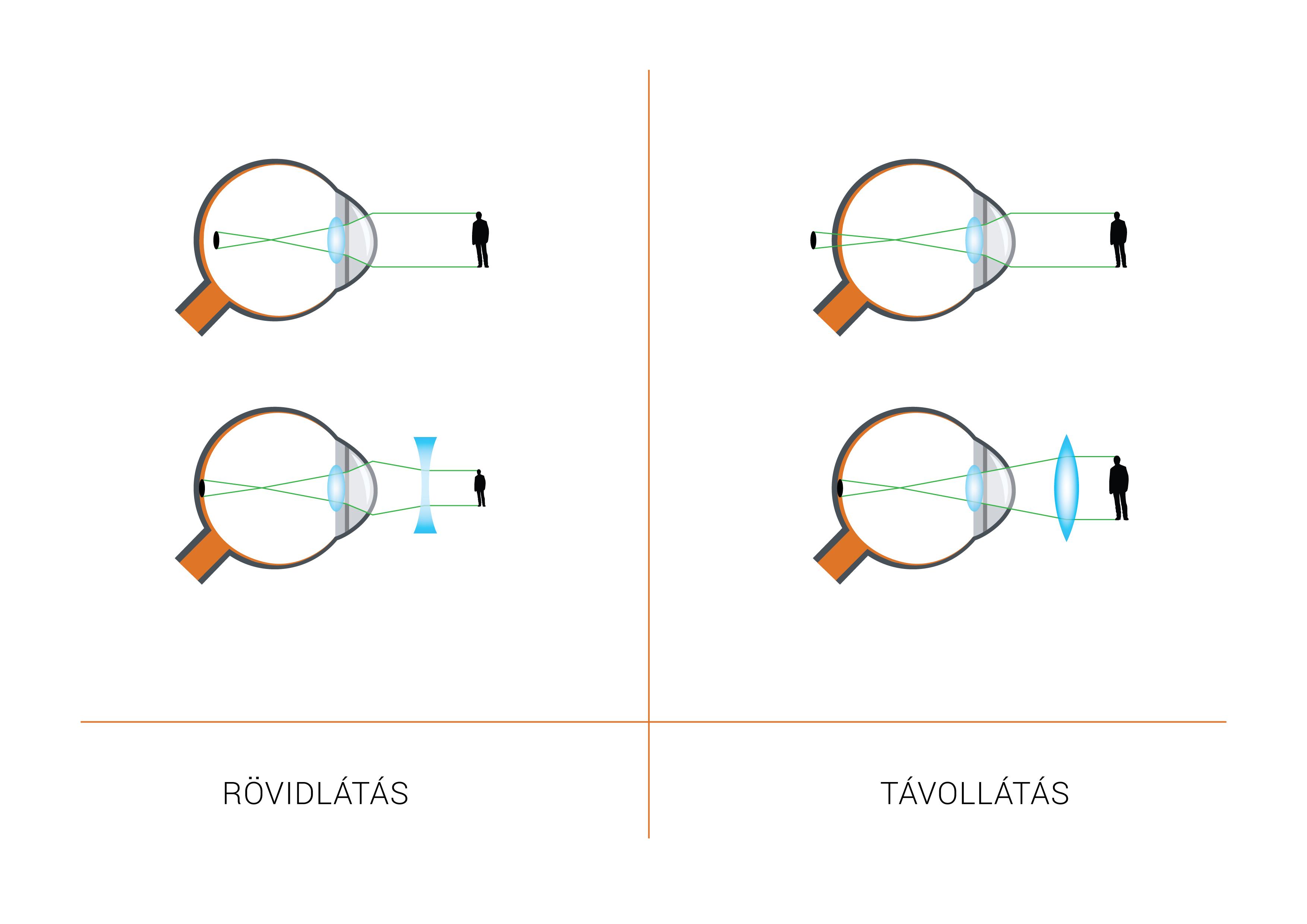 hogyan lehet javítani a látást plusz