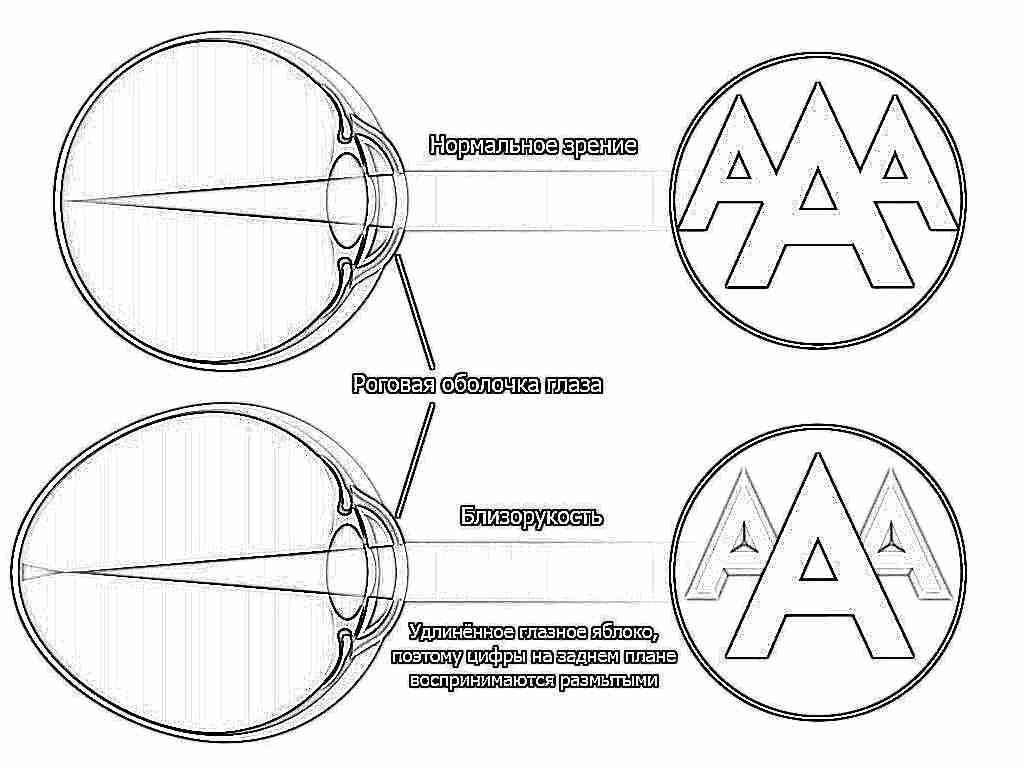 Látásélesség 0 1 Mit jelent ez?