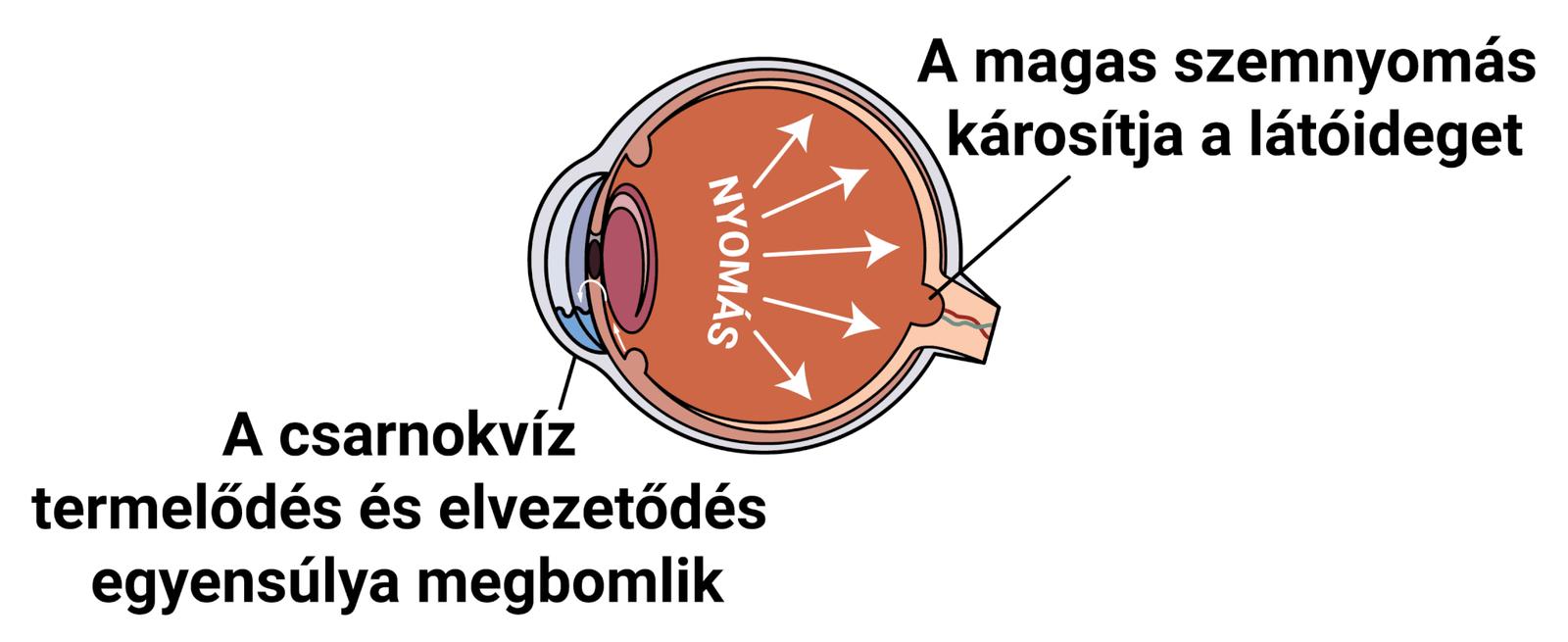 a látásromlás típusai