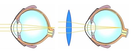 Szimpatika – Ha igazán fontos az éles látás
