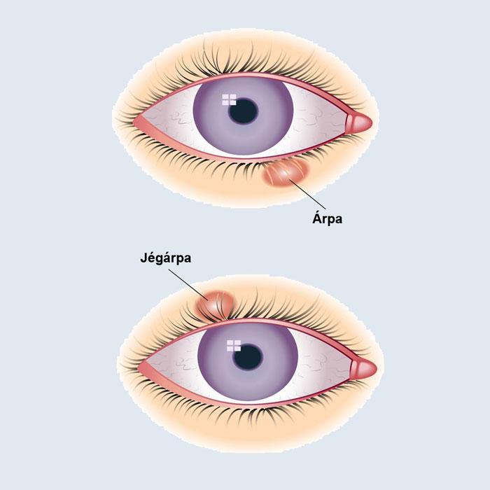 szemhéj sérve szemészeti