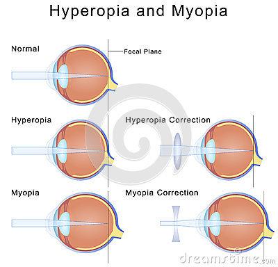 myopia hyperopia diagram normál látás a táblázat szerint