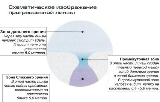 hogyan lehet helyesen ellenőrizni a látást rövidlátás súlyemelés