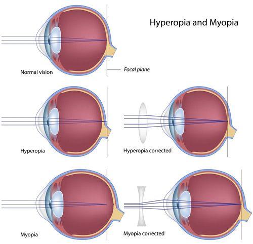 hyperopia képekben