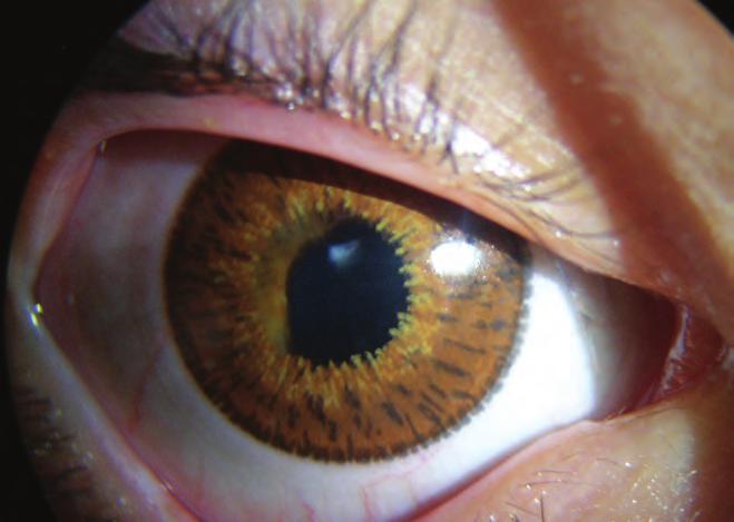szürkehályog műtét nem hozta helyre a látást