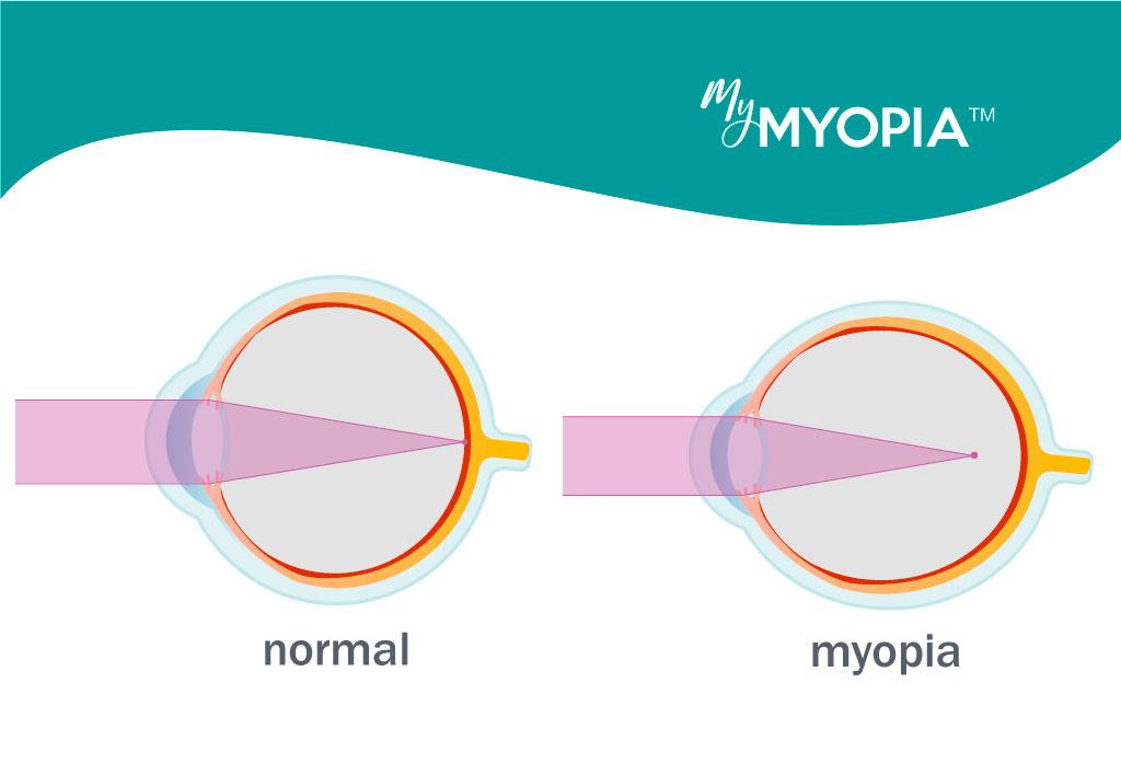 a szemek különböző myopia és hyperopia