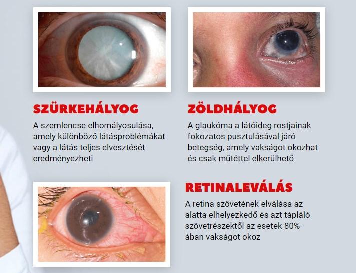 milyen termékek javítják az emberi látást amelytől romolhat a látás