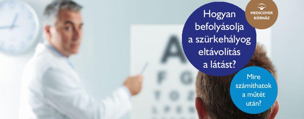 Hogyan változik a szürkehályog műtét utáni látás?