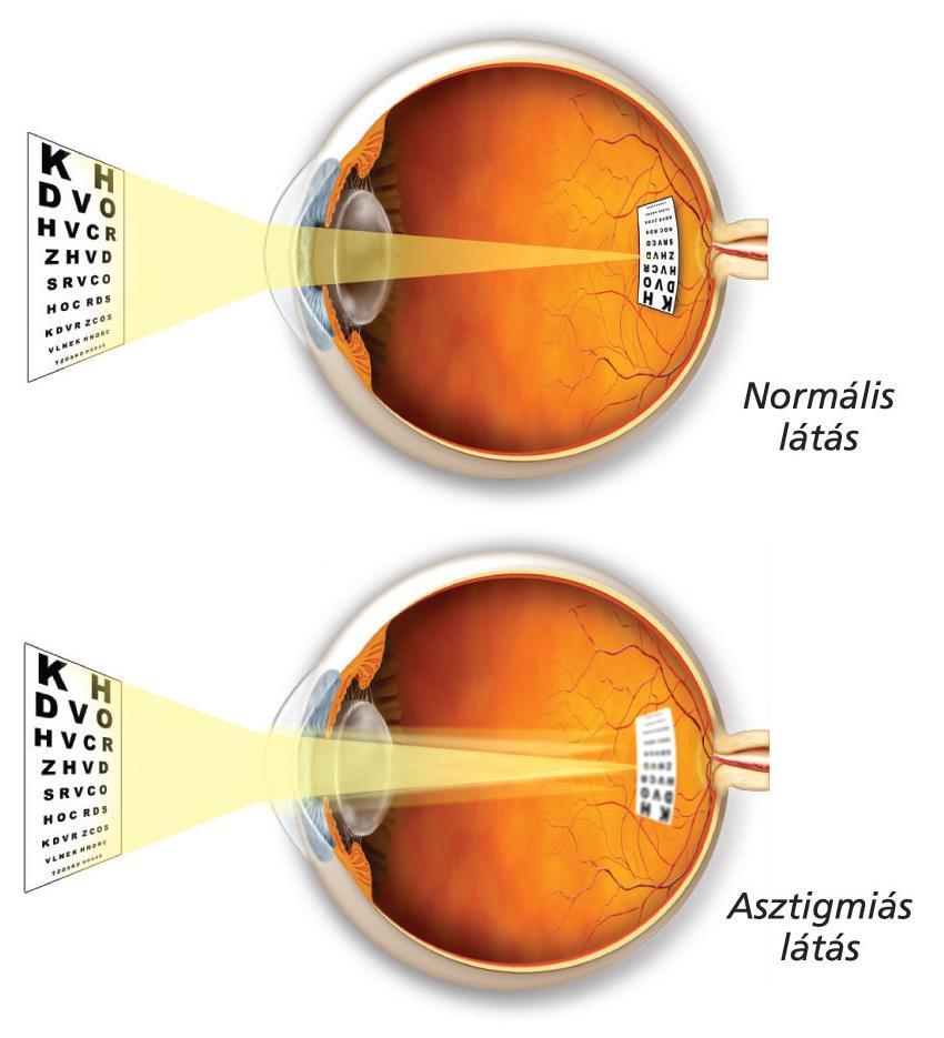 a látás elvész a fejfájástól