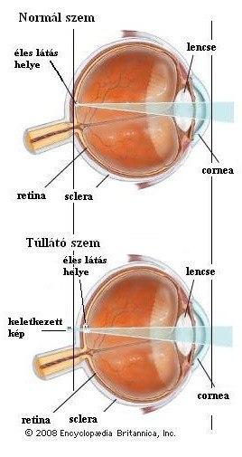 a látás hyperopia
