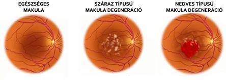 a látás injekcióinak helyreállítása