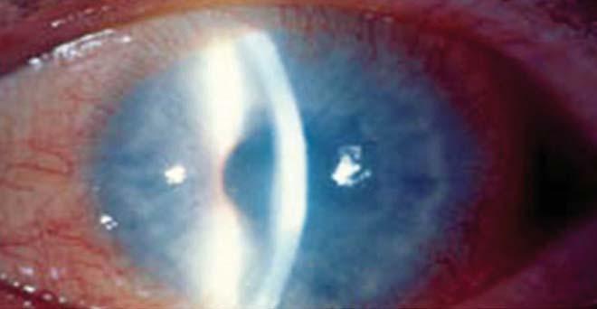 a látás javítására keratitis esetén élet a látásműtét után