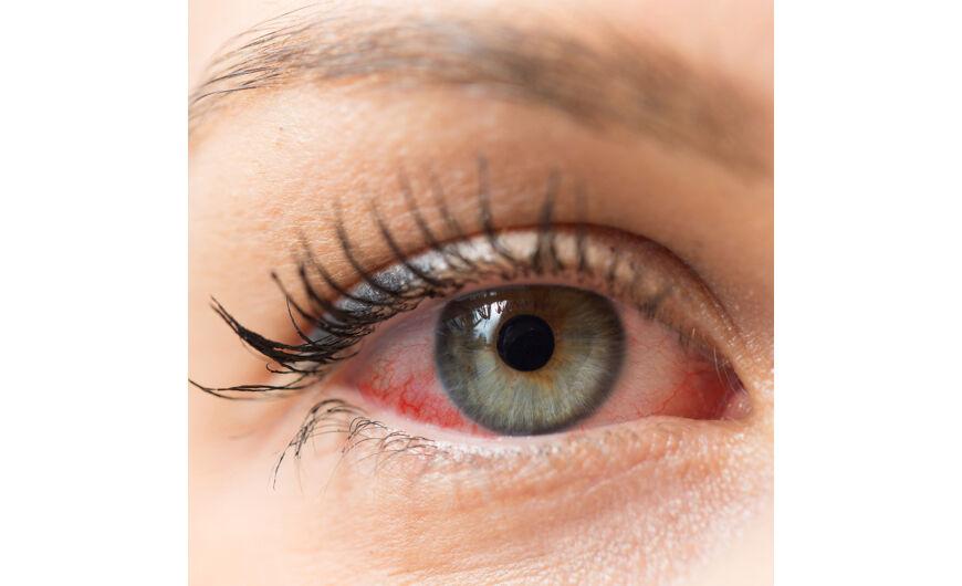 a látás romlott, torokfájás
