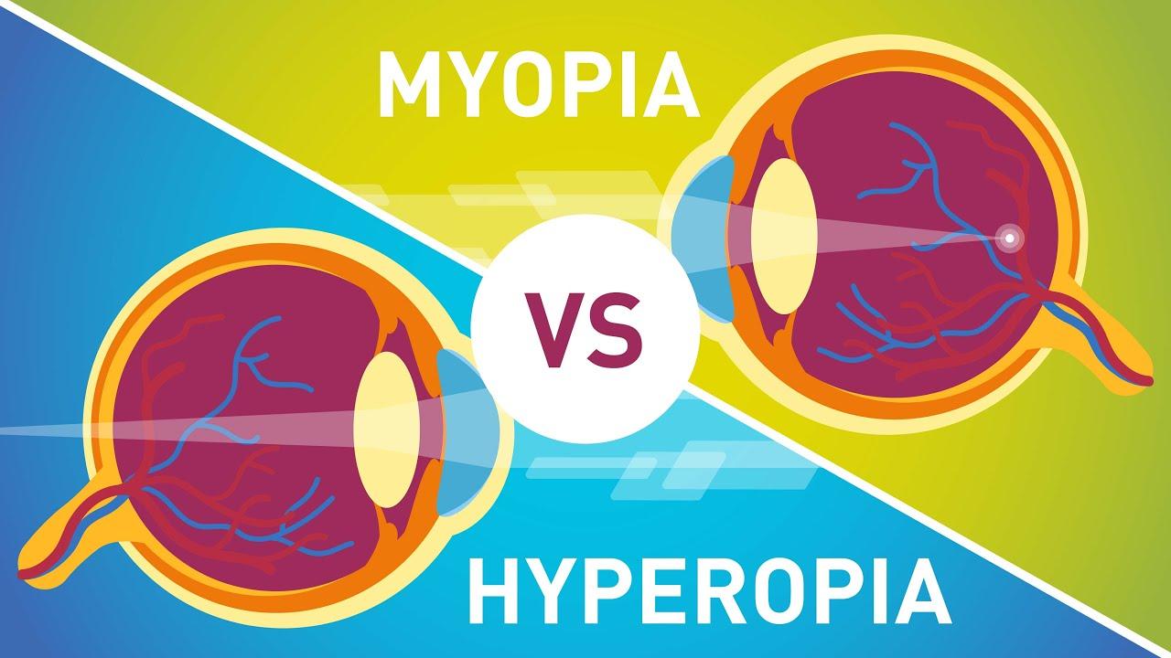 a myopia műtét veszélyes