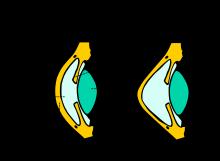 a rövidlátás helyreáll ha 3 myopia vagy hyperopia
