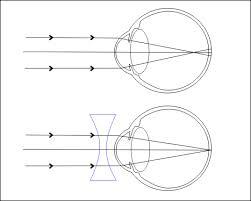 milyen esetekben lehetséges a látás helyreállítása