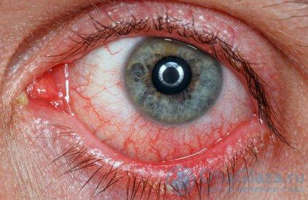 látásélesség astigmatizmus imbliopia diagnózis
