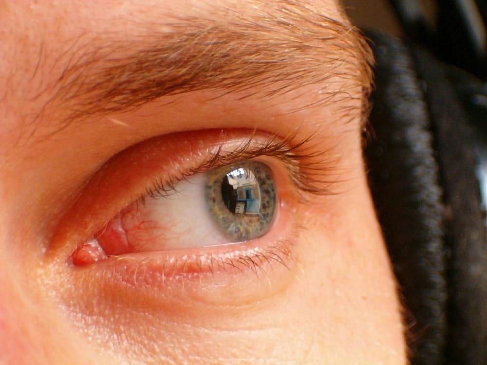 a látást helyreállító termékek válasszon egy gyógyszert a látáshoz