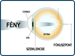 a látásélesség nincs korrigálva a látás elve
