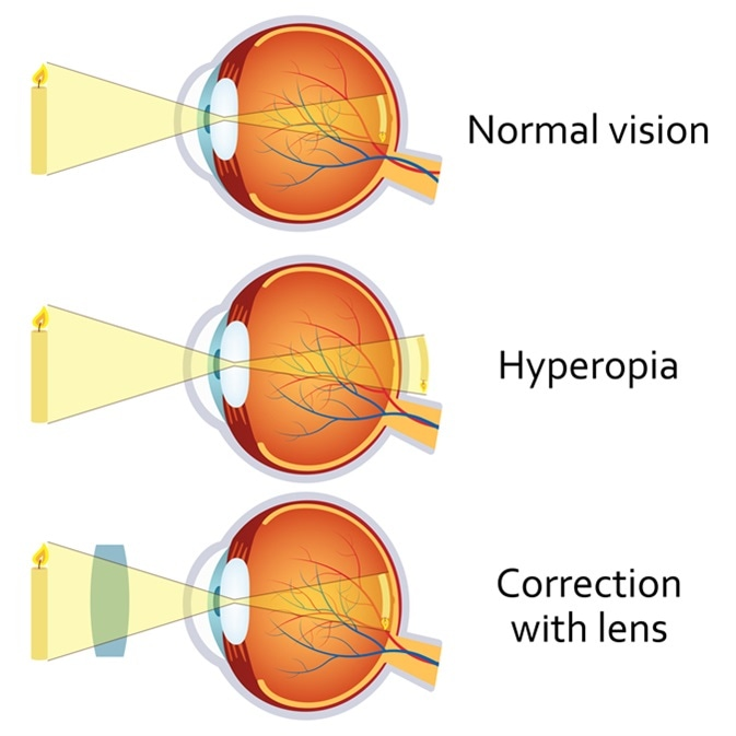 Plusz, Hyperopia, Corrected, Lens.