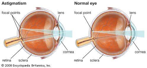 mit jelent a nehéz látás