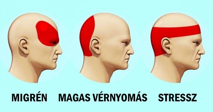Neked hol fáj a fejed? Mutatjuk, mit jelent pontosan!