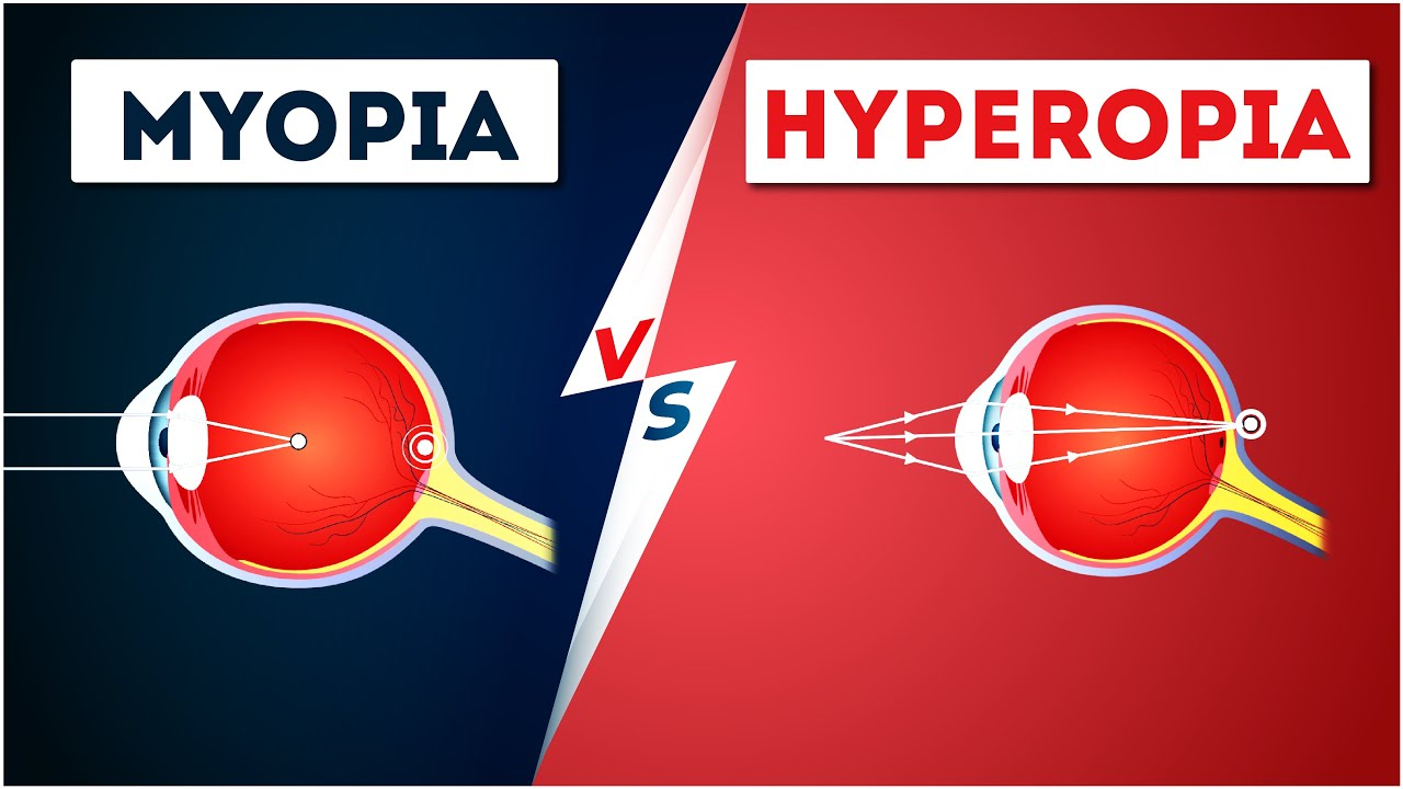 a látás mínusz myopia vagy hyperopia