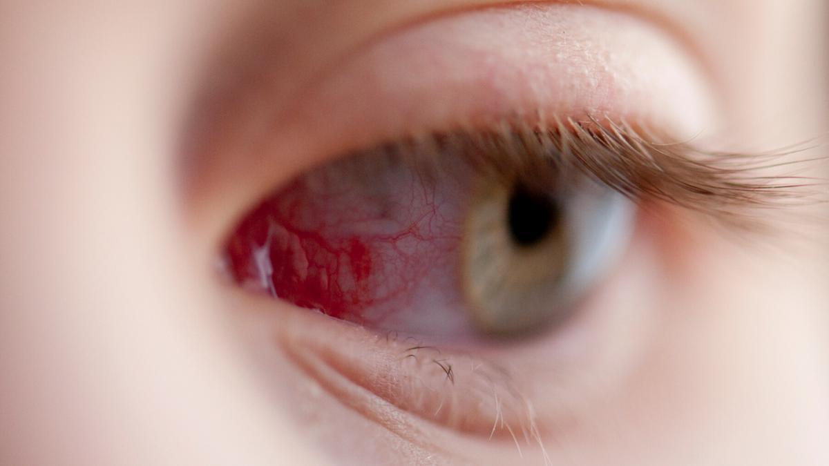 gyenge látás, hogyan lehetne javítani