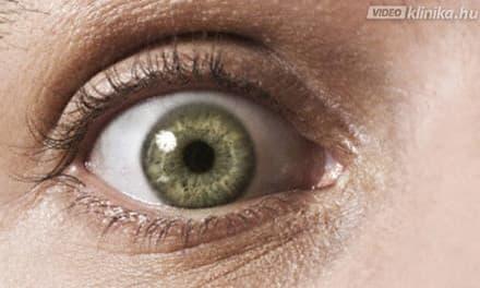 hirtelen látásvesztés oka