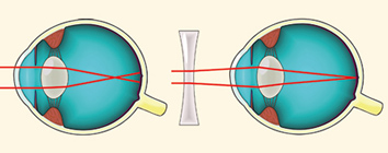 elvesztette a látását, hogyan kell kezelni