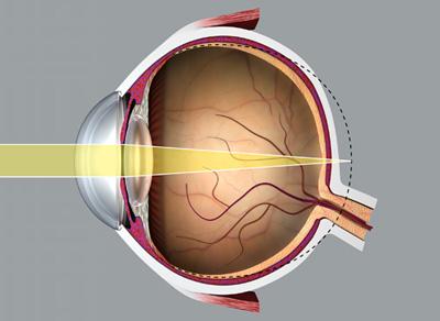 hyperopia az egyik szem gyengébb hogyan kell kezelni a látásélességet