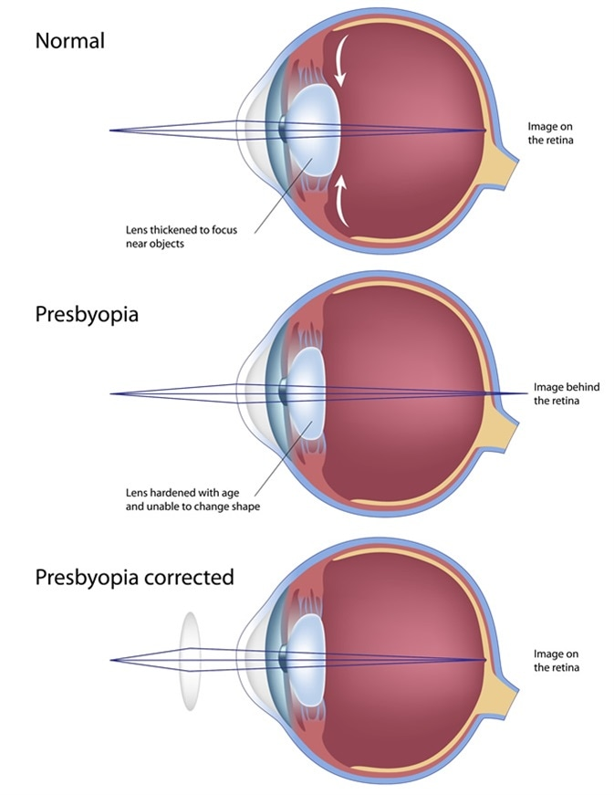 hyperopia myopia and presbyopia