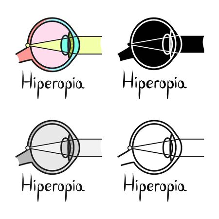 Hyperopia szemteszt online