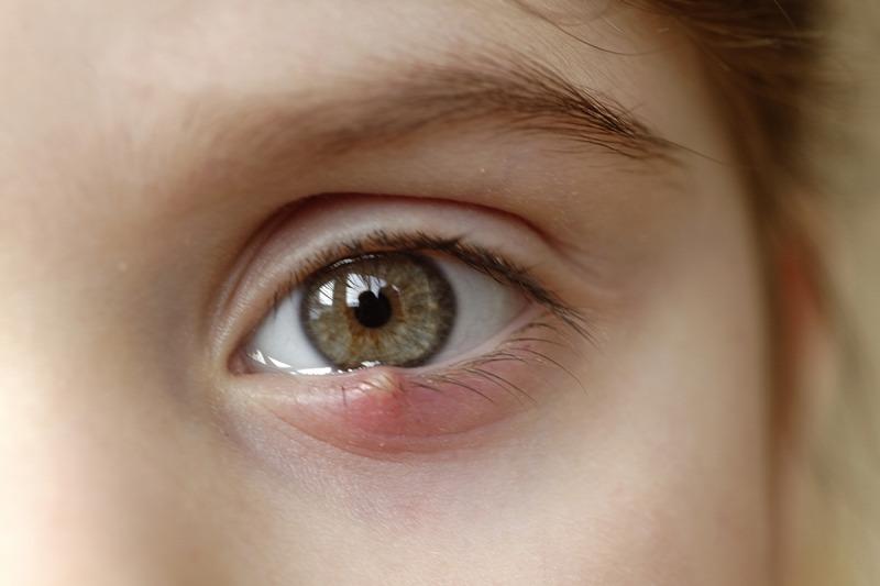 a látás legújabb fejleményei közlekedésrendészeti előírások a látásra