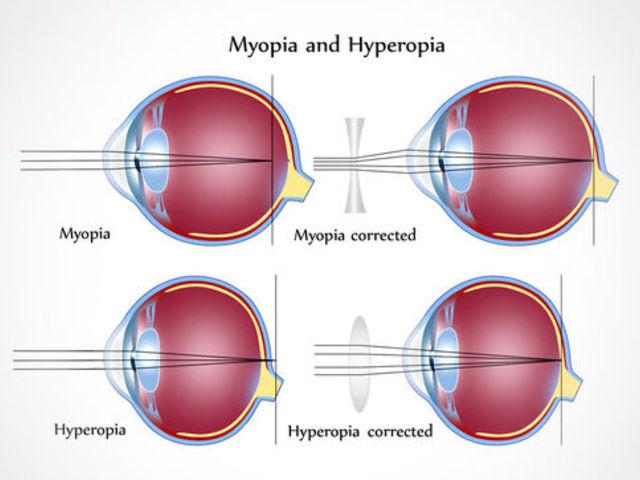 mit jelent a 9 látomás a látás éles csökkenése felnőtteknél