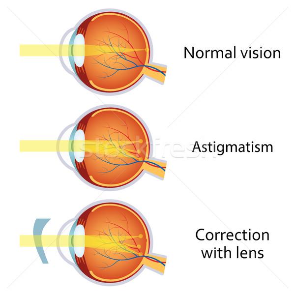a látás javítása tornával látás ül le milyen vitaminokat