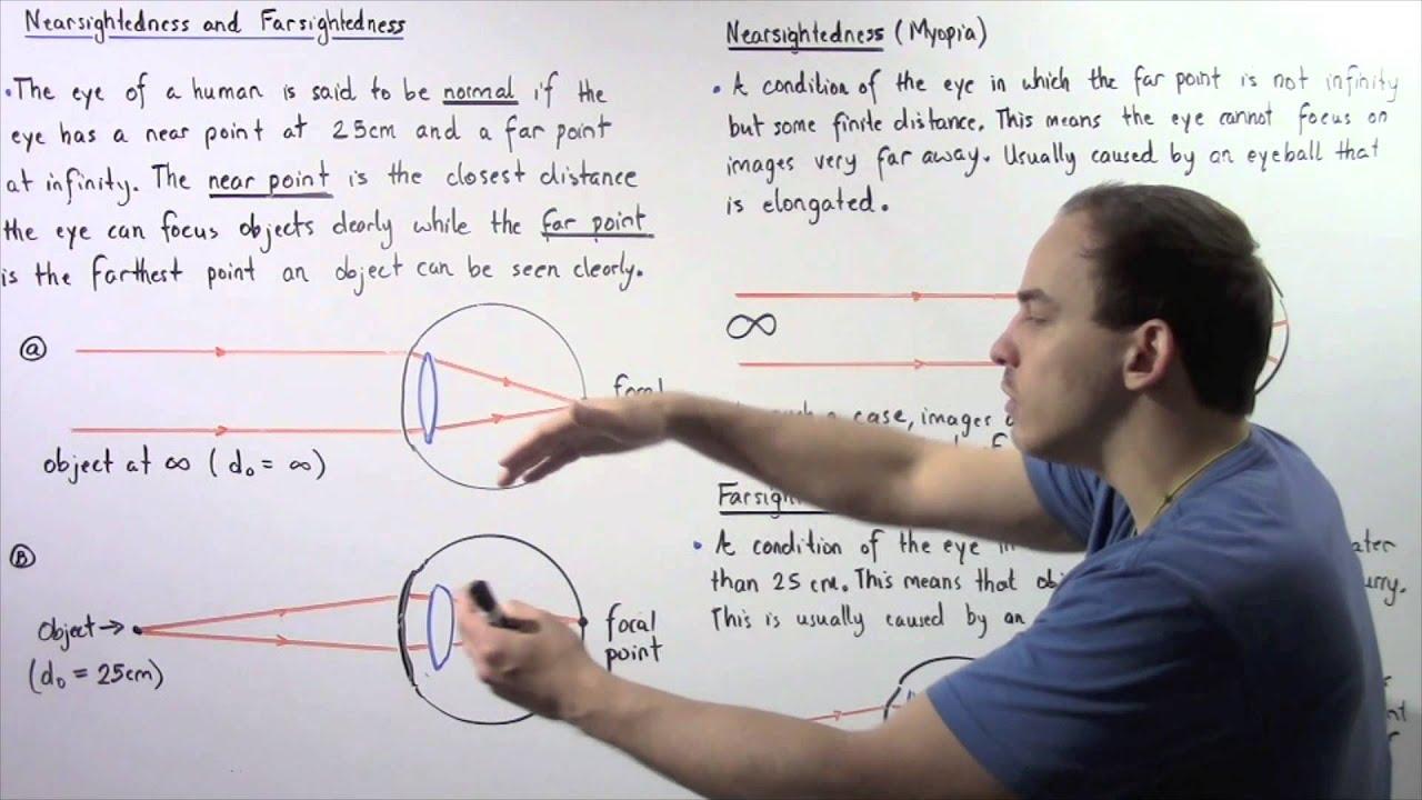 látás-helyreállítási videó gyakorlása