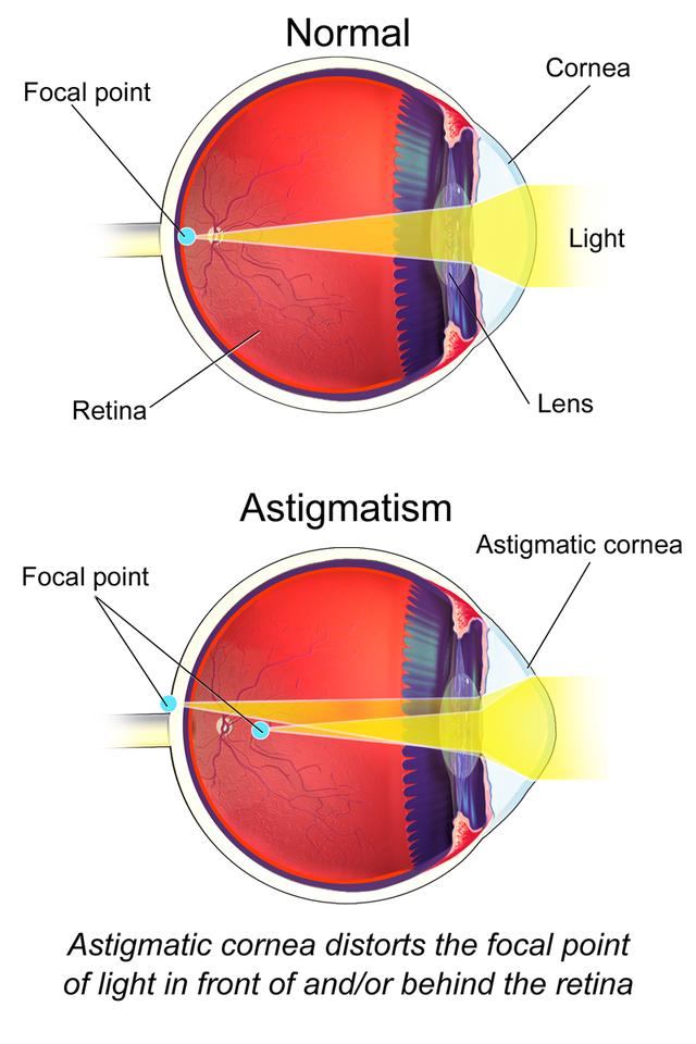látás rövidlátó asztigmatizmus nézd meg a gyertya látványt