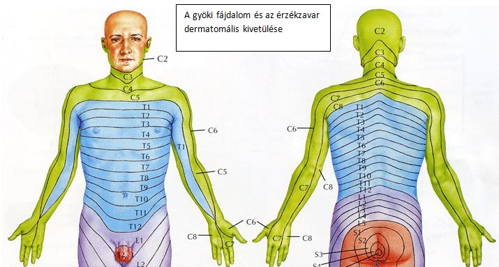 látási problémák a nyaki gerinc miatt bölcs a myopia esetén