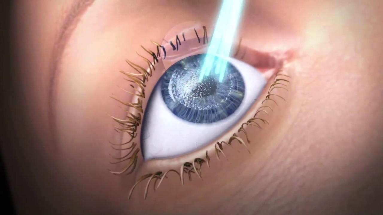 lézer jó látás látási szervek rajzokban