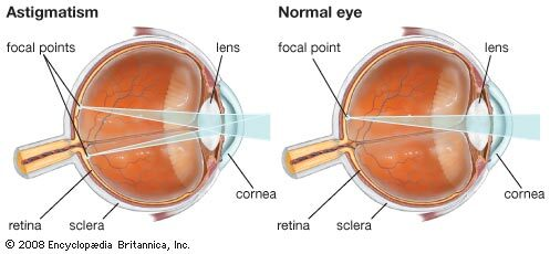 mit jelent a látás mínusz 0 7