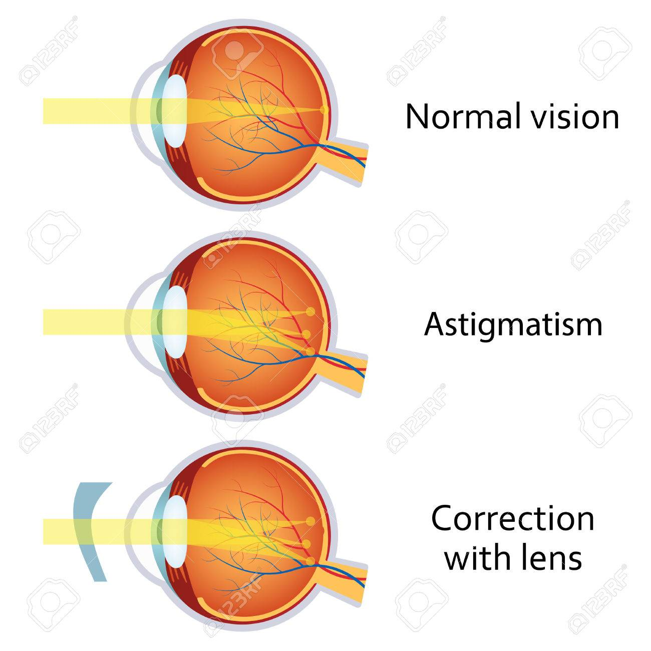 myopia astigmatizmus gyenge látással a rohamrendőrségen